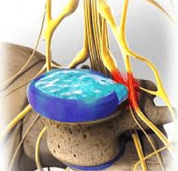 le-disque-vertebral